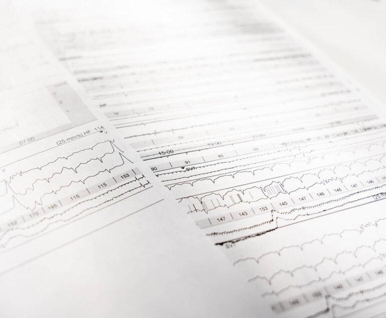 hrv analyse kardiologie am schlosspark benrath