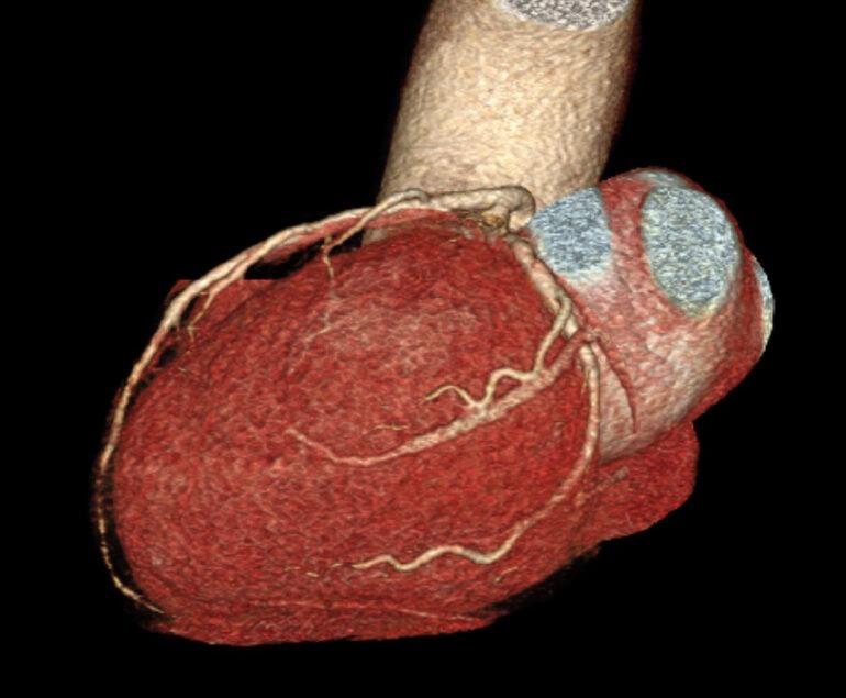 kardio ct kardiologie am schlosspark benrath